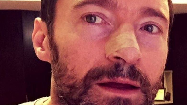 Hugh Jackman with a dressing over his nose following surgery to remove a skin cancer