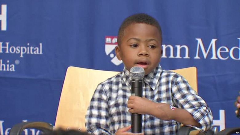 Zion Harvey shows off his hands, a year since his double transplant.