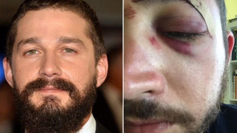 Shia LaBeouf and an injured Mario Licato