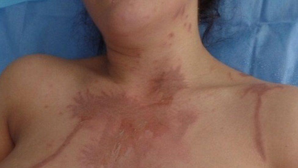 Phoebe Georgiou's chest showing acid burns