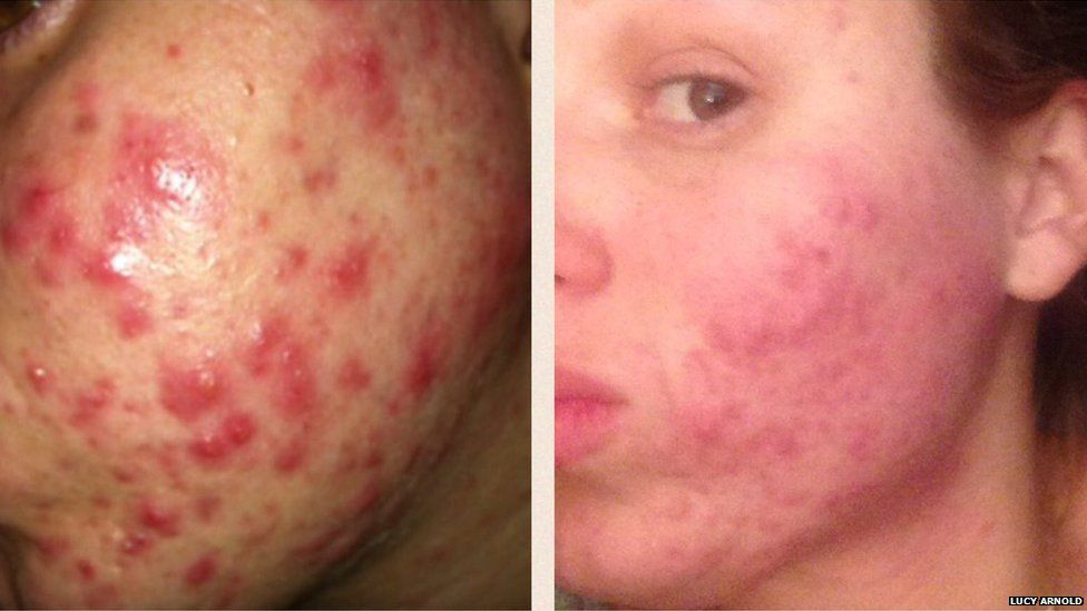 how to clear up back acne from steroids
