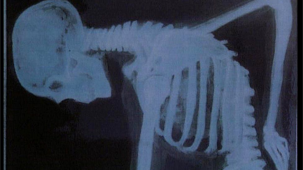 skeleton holding back