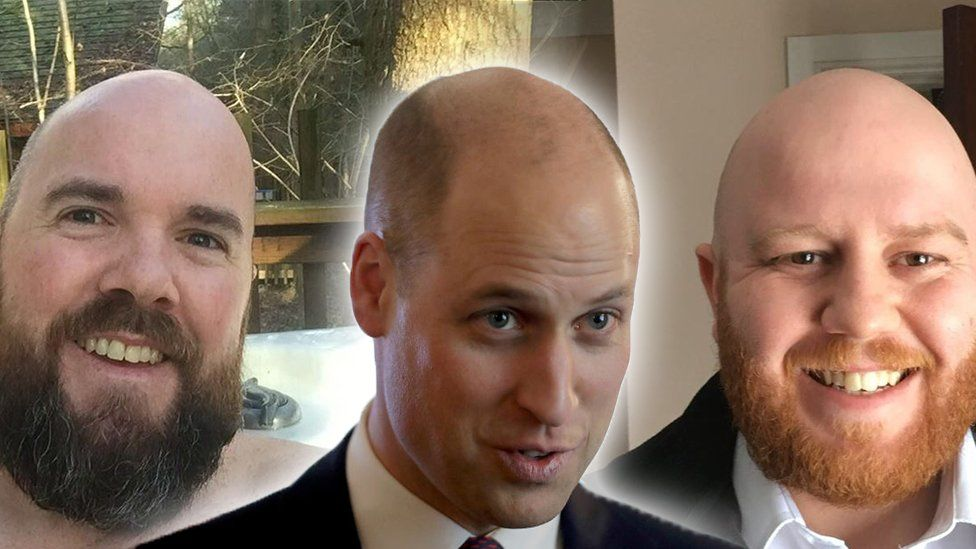 Prince William comes to terms with baldness, buzzes hair