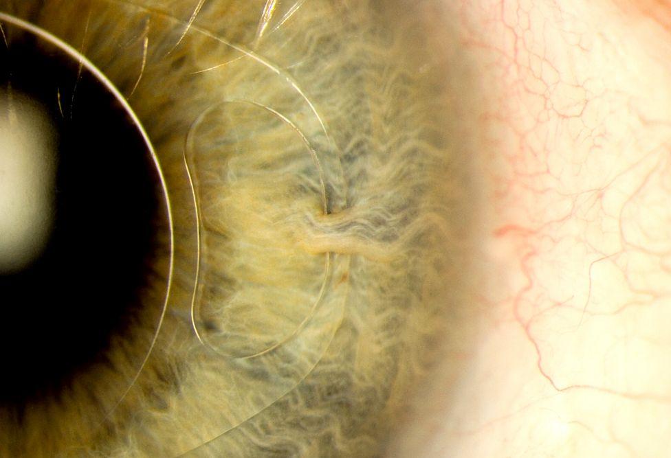 Intraocular lens 'iris clip'