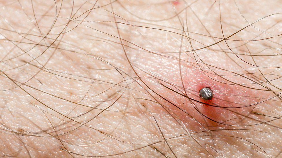 A tick on a man's skin