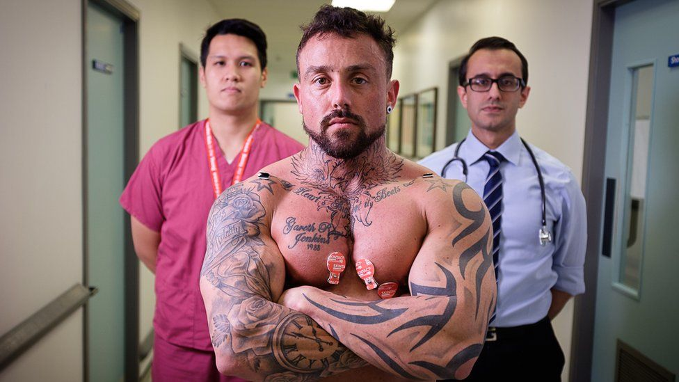 Steroid abuse 'raising health risk for thousands'