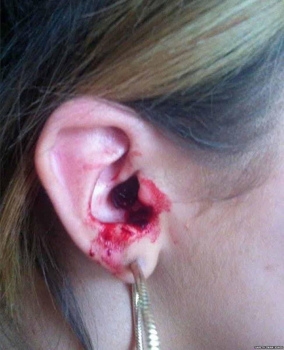 Marnie-Rae Harvey's ear