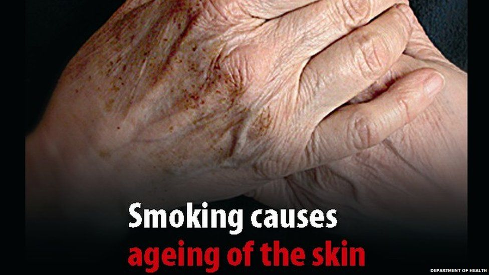 Smoking picture warning for cigarette packs
