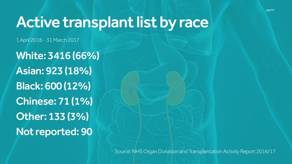 A fact box on the active transplant list by race