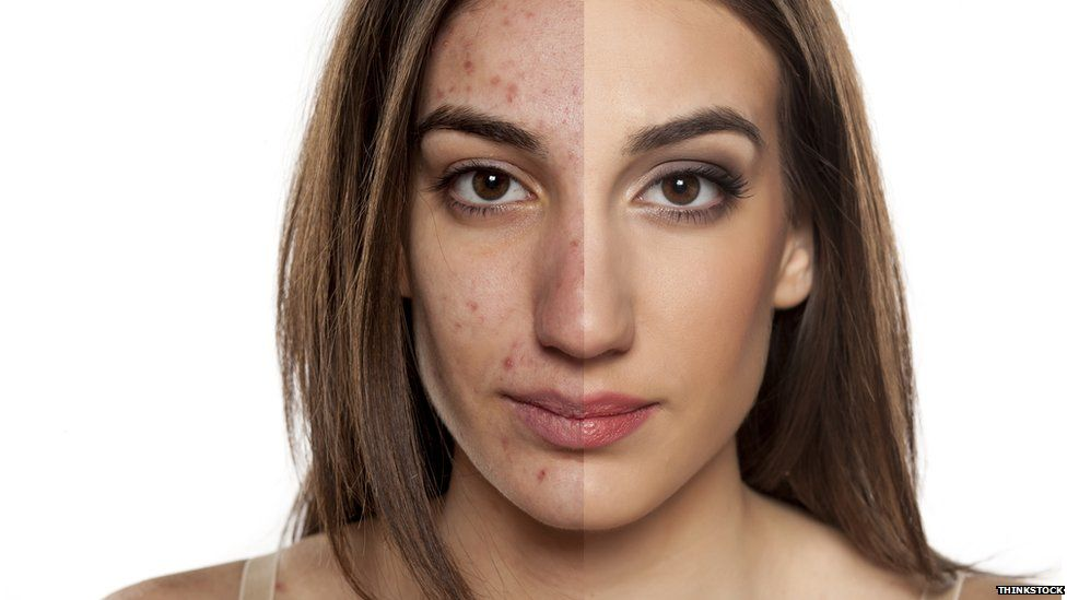 Acne before and after photoshopping and make up