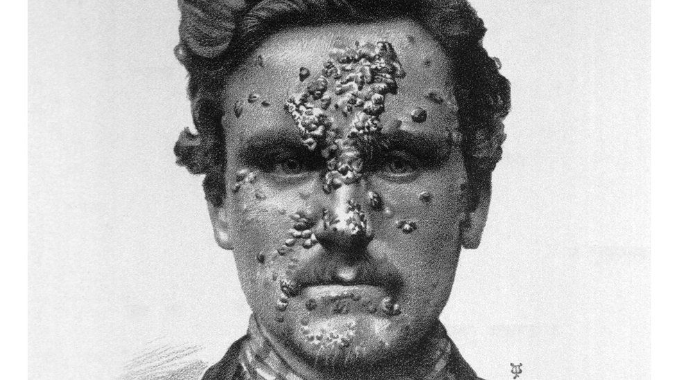 A syphilis sufferer before the days of antibiotic treatment