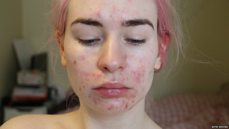 Adult severe acne