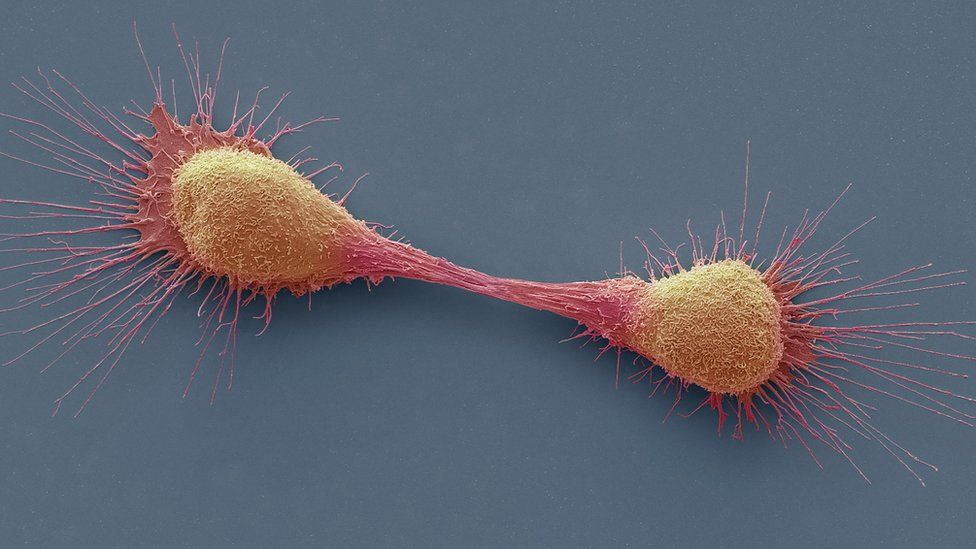 http://ichef.bbci.co.uk/news/976/cpsprodpb/819C/production/_89508133_c0225111-dividing_prostate_cancer_cells,_sem-spl.jpg