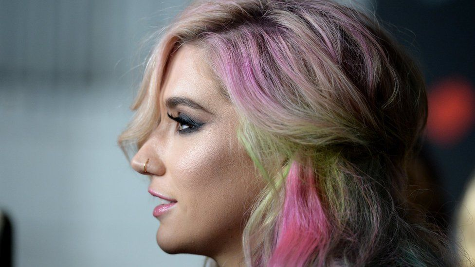 profile picture of kesha