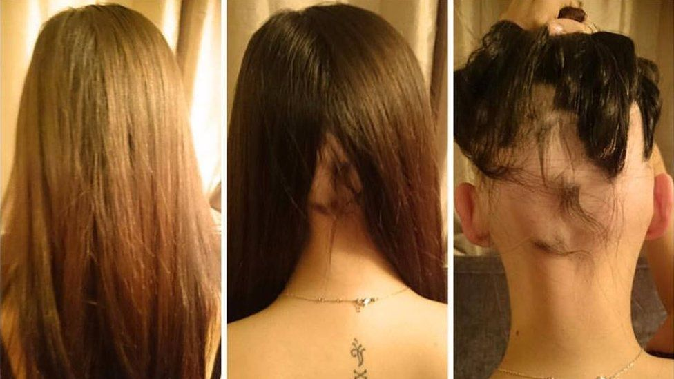 Comparison of the back of Jade's hair-loss over time