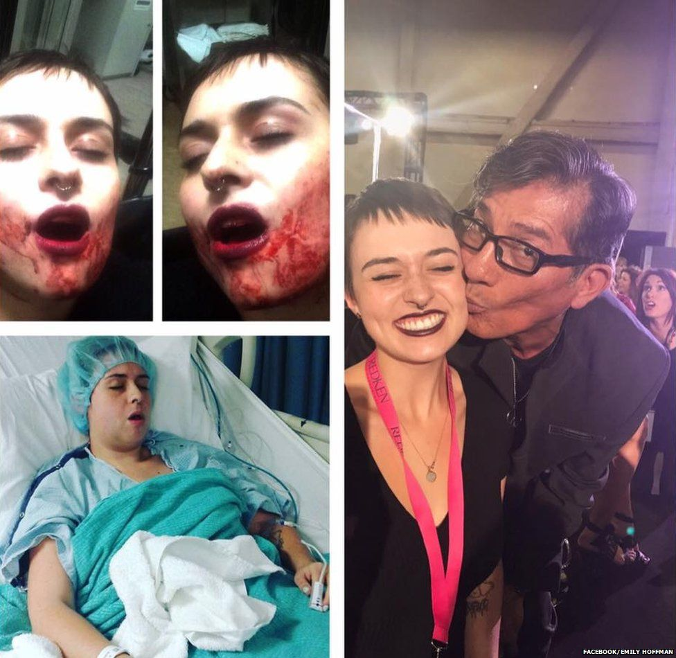 US fan criticises violence at gigs after having her jaw broken and ...