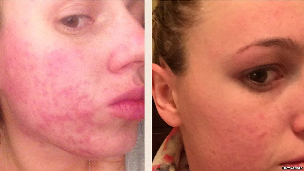 Lucy suffered with acne for three years.