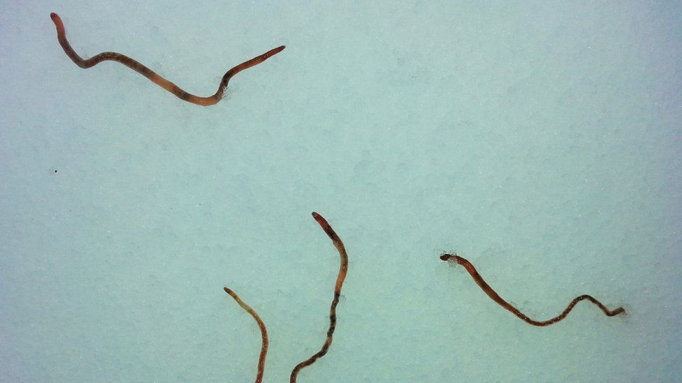 Worms In My Shower Pictures To Pin On Pinterest Pinsdaddy
