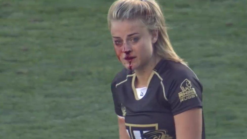 Georgia Page with a bloody nose