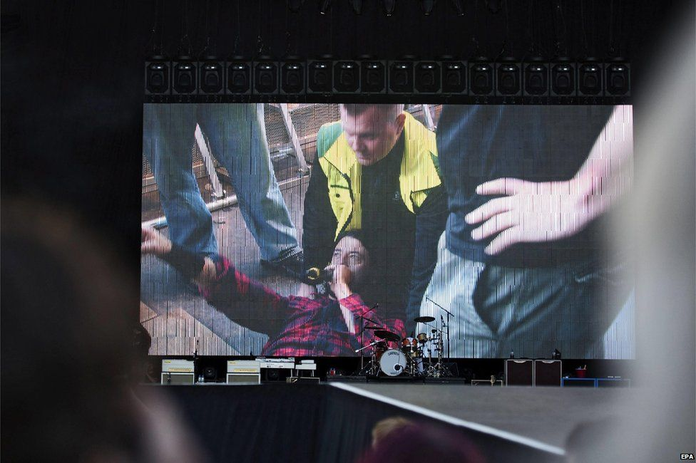 Dave Grohl lies on stage after fracturing his leg