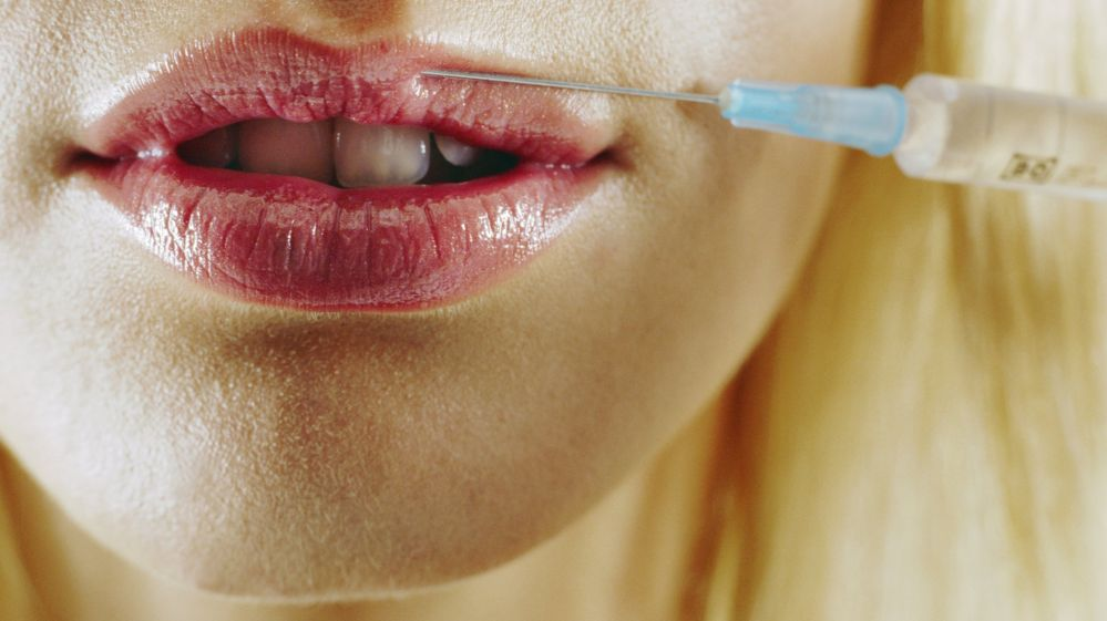 Lack of regulation' causing botched lip fillers, says Body