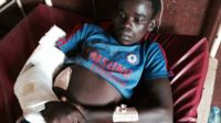 A boy being treated at the University Hospital in Bambari, CAR