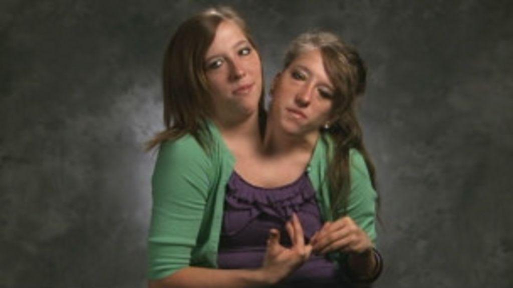 Documentário mostra 'vida normal' de gêmeas coligadas dos EUA ...