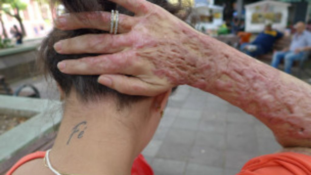 Santa Maria: jovens ainda vivem rotina de tratamento - BBC Brasil