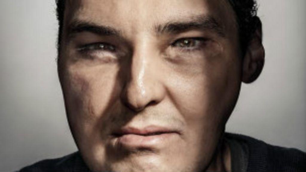Homem que sofreu transplante de rosto está 'inegavelmente ...