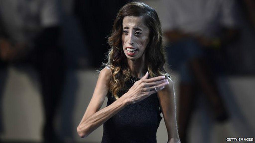 Filme mostra como mulher chamada de 'mais feia do mundo ...