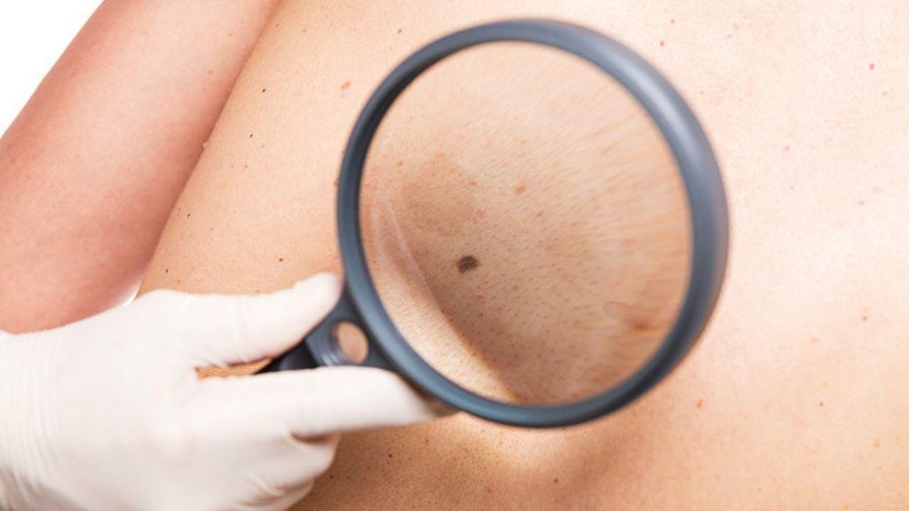 Como reconhecer os sinais de câncer de pele - BBC Brasil