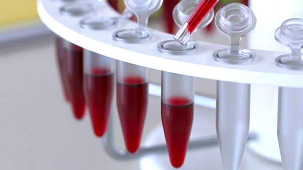 Exame de sangue detecta até 86% de casos de câncer de ovário ...