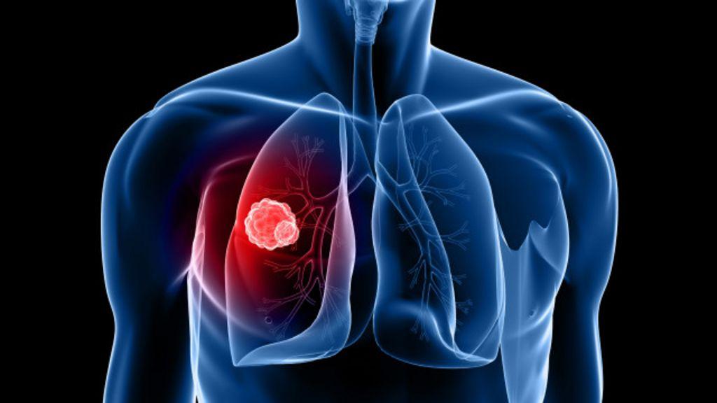 Novo tratamento contra câncer de pulmão pode dobrar sobrevida ...