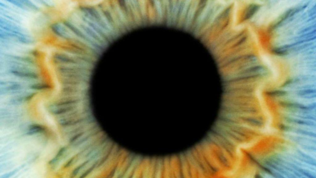 ' Olho fantasma', a síndrome que desafia os médicos - BBC Brasil