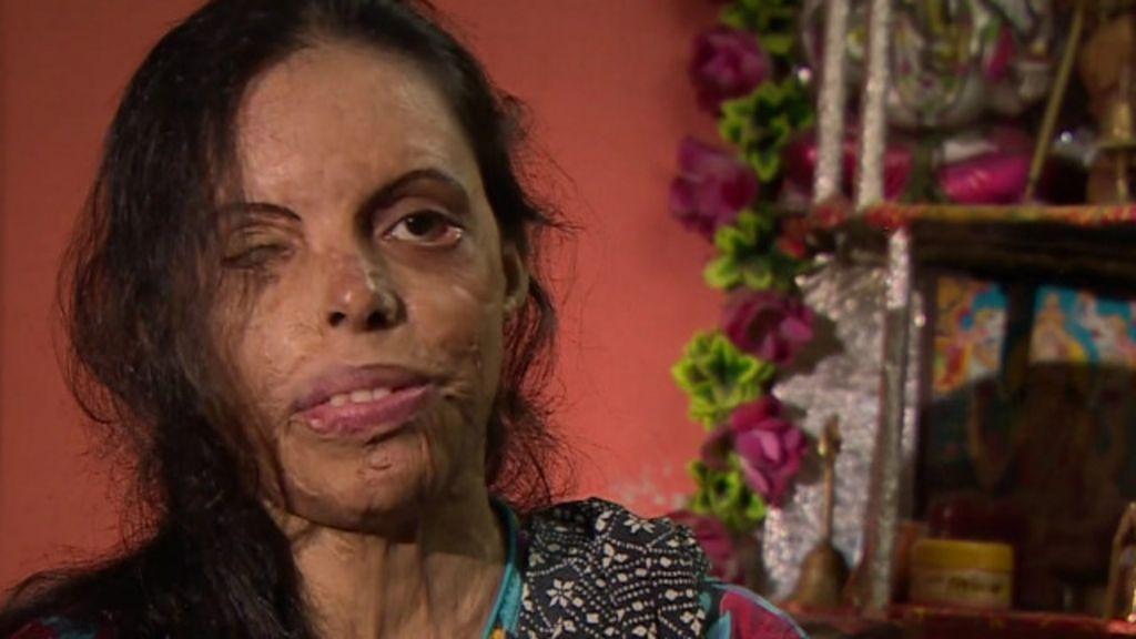 Sobrevivente de ataque com ácido cria salão de beleza para ajudar ...