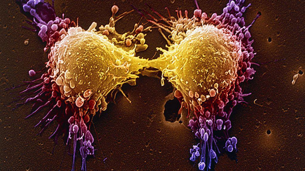 Nova terapia genética faz células de câncer cometerem 'suicídio ...