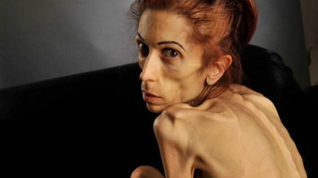 Americana que pesava 18 kg mostra recuperação de anorexia ...