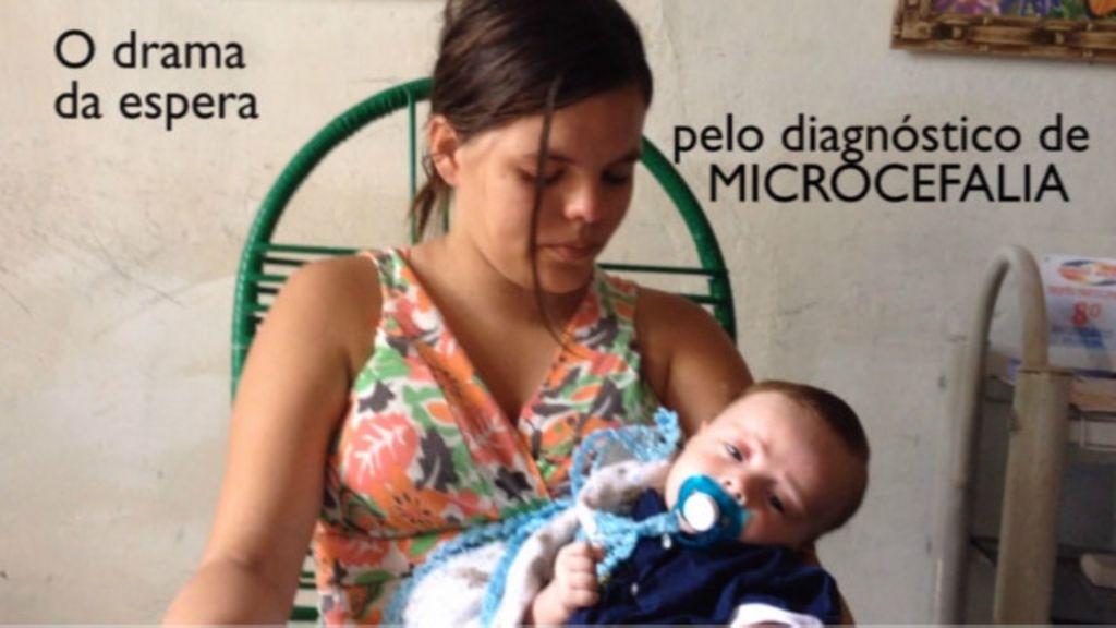 Microcefalia: O drama das mães que esperam o diagnóstico dos ...