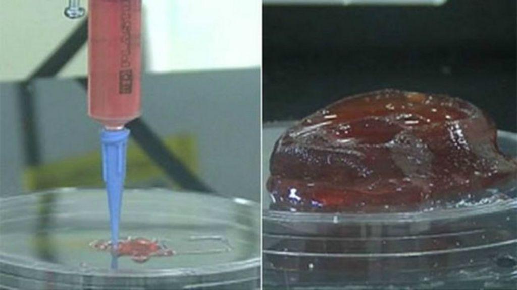 Cartilagem cultivada em laboratório poderá 'reconstruir partes do ...