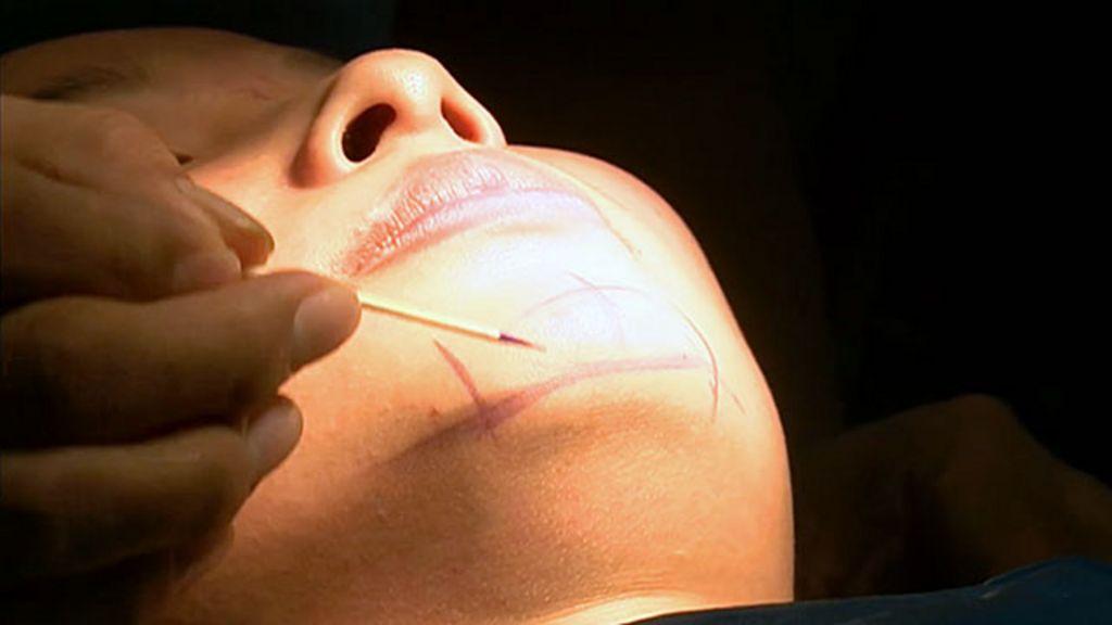 China vive boom de cirurgias plásticas - BBC Brasil