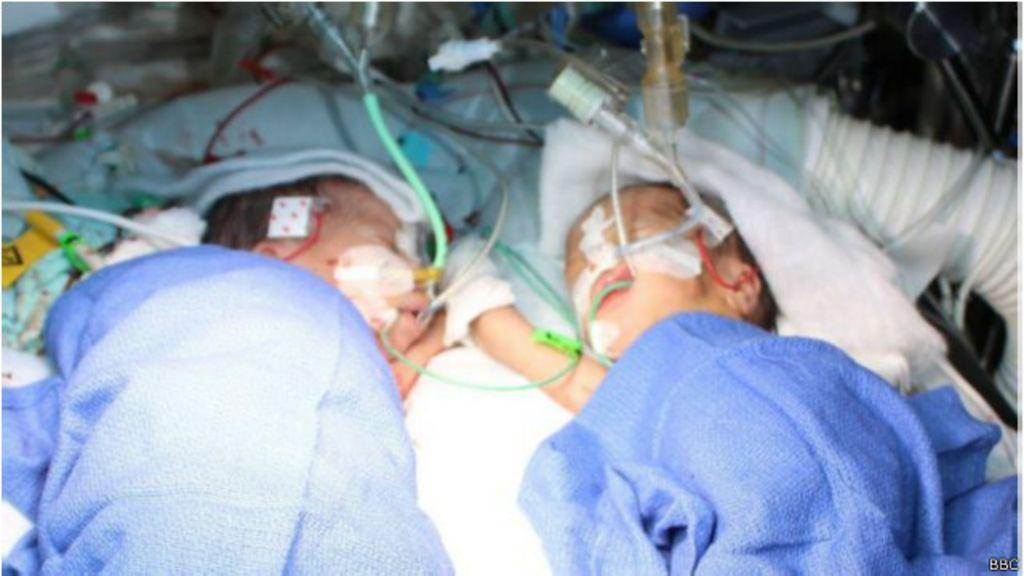 Gêmeas siamesas desafiam '1% de chance' e são mais novas ...