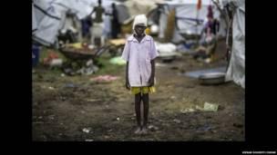 Ce garçon Nuer de 10 ans a reçu trois balles dans la tête durant une attaque dans un camp de Bor. Etat de Jonglei, Soudan du Sud