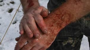 La OMS recomienda lavar la herida conciezudamente e ir al médico con urgencia ante la menor mordedura.