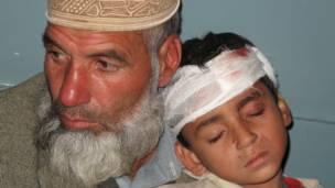 طفل مصاب، سوات، باكستان.