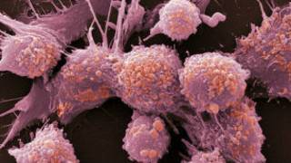 Células cancerosas de próstata