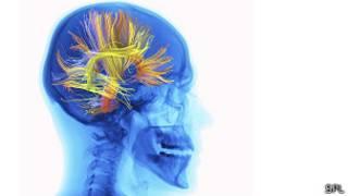 Materia gris del cerebro