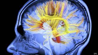 Conexiones en cerebro humano
