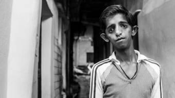 Los niños de Bhopal nacieron con fatiga crónica, enfermedades respiratorias o con deformidades.
