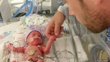 bayi kembar lima texas