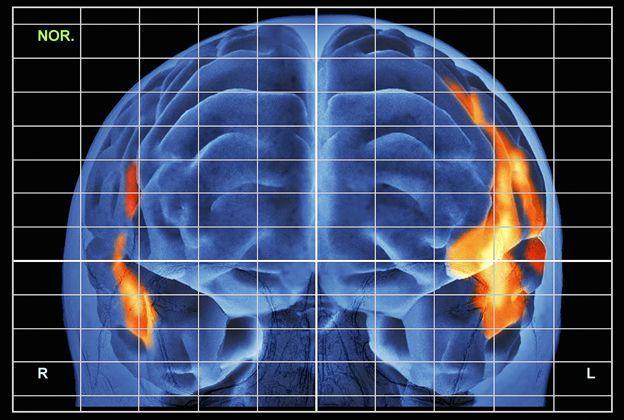 Escan cerebral